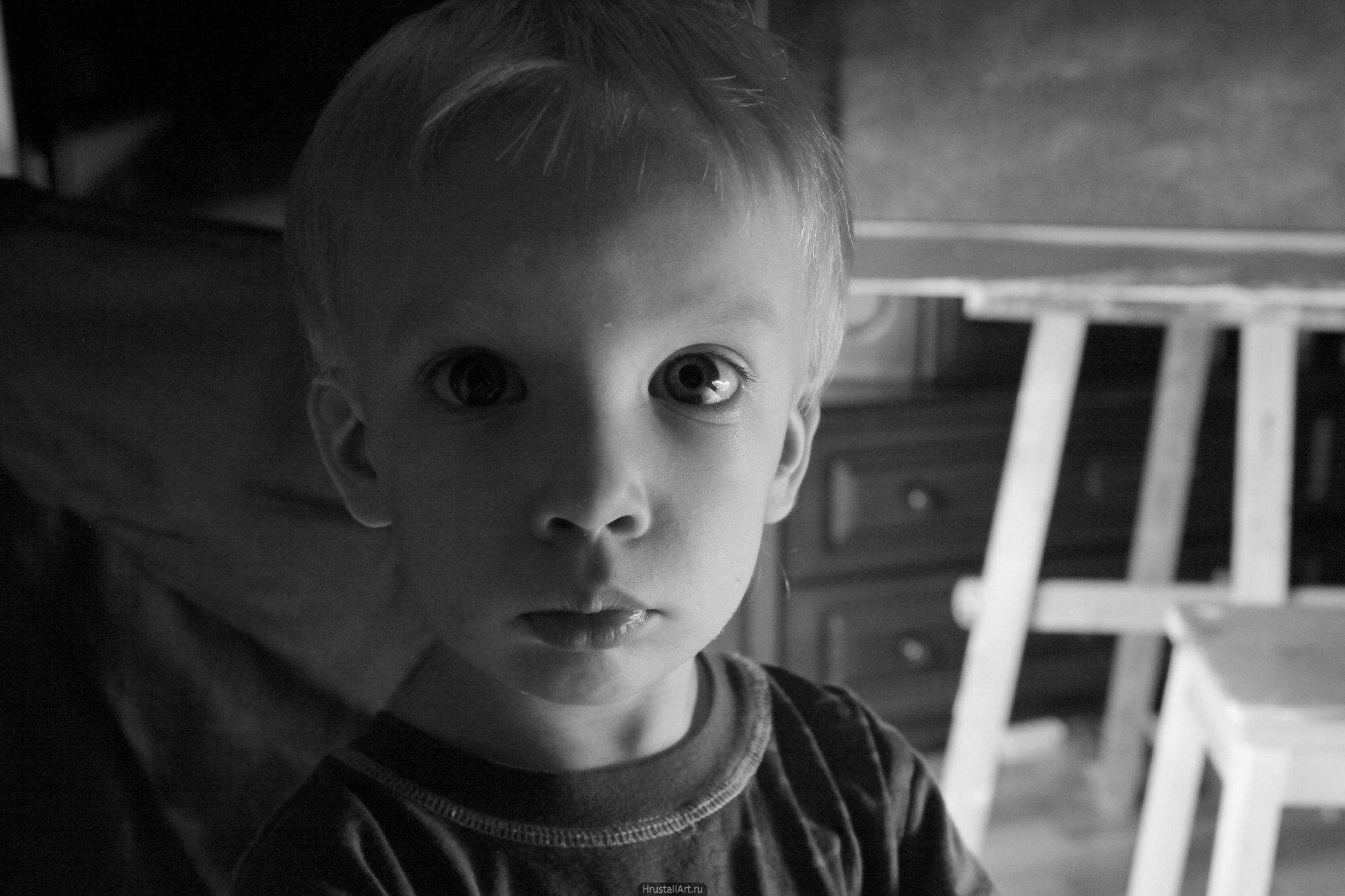 Ребенок с крупными глазами.